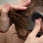 Guide Health: The itchiness of head lice